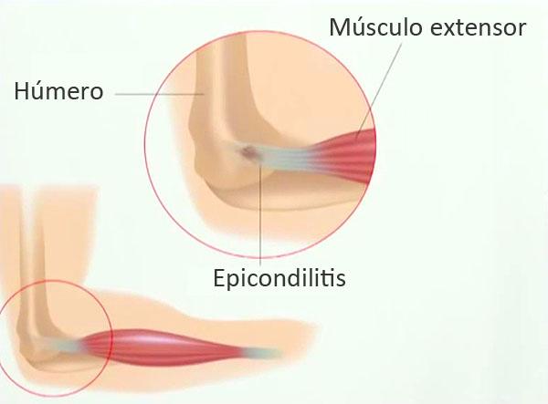 Epicondilitis en el padel. Epicondilitis lateral o codo de tenista